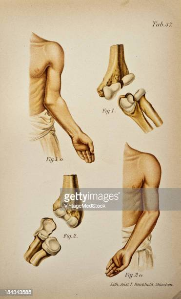Illustration from 'Atlas and Epitome of Traumatic Fractures and Dislocations' 1902 Fig 1 Old oblique fracture of the lower end of the humerns with...