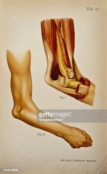 Illustration from 'Atlas and Epitome of Traumatic Fractures and Dislocations' 1902 Fig 1 Anatomic specimen showing a backward displacement...