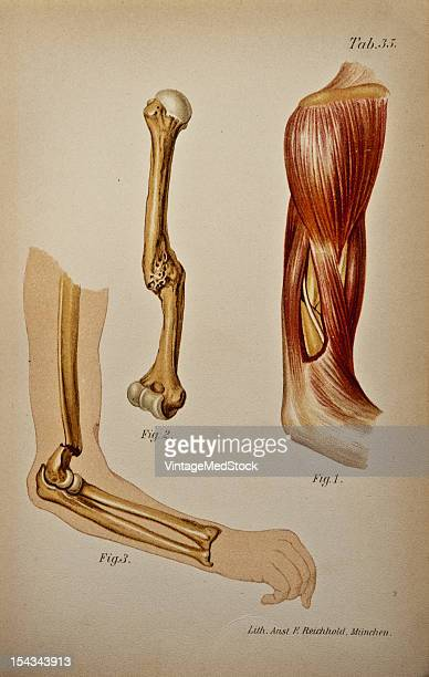 Illustration from 'Atlas and Epitome of Traumatic Fractures and Dislocations' 1902 Fig 1 Anatomic preparation of the humeral region Lateral view...