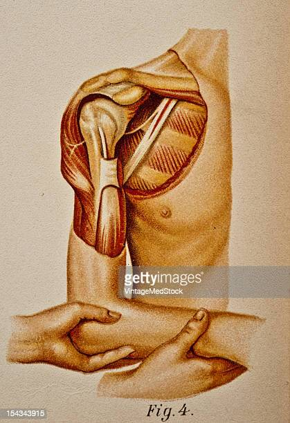 Illustration from 'Atlas and Epitome of Traumatic Fractures and Dislocations' 1902 Fig 4 Inward rotation completing the act of reduction step IV
