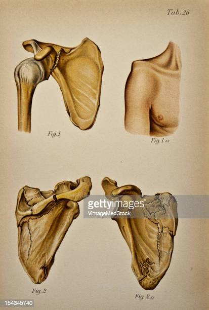 Illustration from 'Atlas and Epitome of Traumatic Fractures and Dislocations' 1902 Fig 1 Specimen of fracture of the neck of the scapula The fragment...