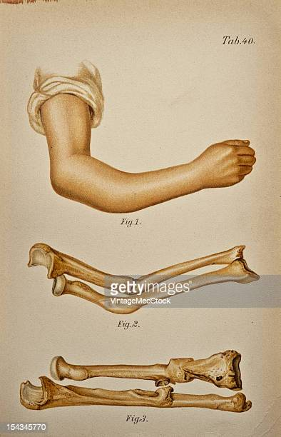 Illustration from 'Atlas and Epitome of Traumatic Fractures and Dislocations' 1902 Fig 1 Typical displacement of the fragments in fracture of the...