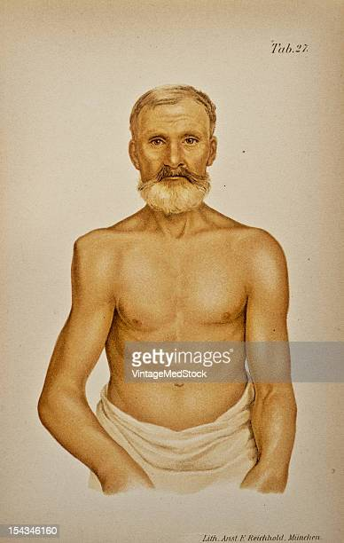 Illustration from 'Atlas and Epitome of Traumatic Fractures and Dislocations' 1902 The patient a man of sixty four was injured about three weeks...