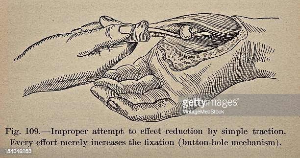 Illustration from 'Atlas and Epitome of Traumatic Fractures and Dislocations' 1902 Fig 109 Improper attempt to effect reduction by simple traction...