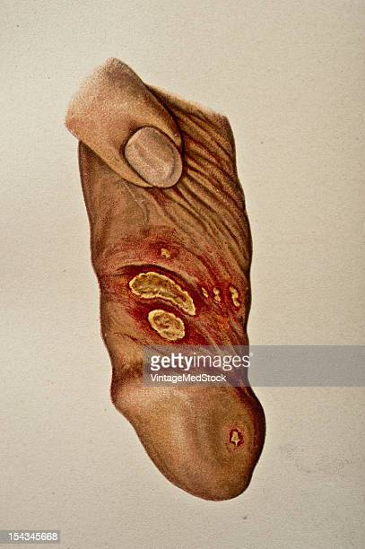 Illustration from 'Atlas of Syphilis and the Venereal Diseases' 1898 On the left side of the inner layer of the prepuce are two large venereal ulcers...