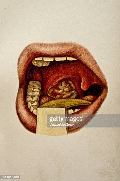 Illustration from 'Atlas of Syphilis and the Venereal Diseases' 1898 Present Condition The right tonsil is larger than a pigeon's egg and readies...