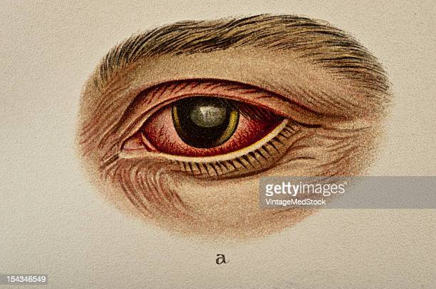 Illustration from 'Atlas of Syphilis and the Venereal Diseases' 1898 Ophthalmoscopic Examination by Professor Bergmeister The right eye diverges it...