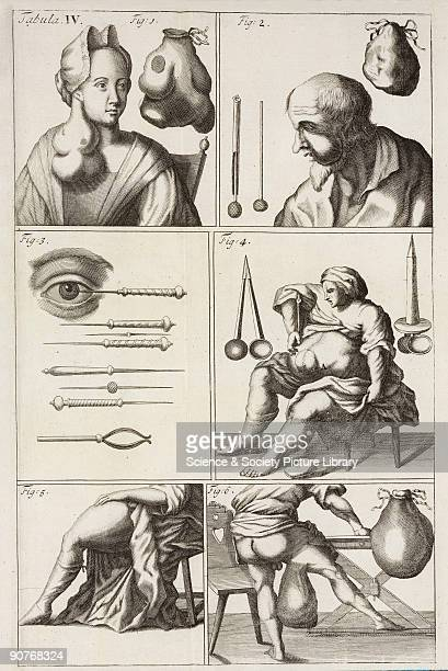 Illustration from �Chirurgia curiosa or The newest and most curious observations and operations in the whole art of chirurgery� by Matthias Gottfried...