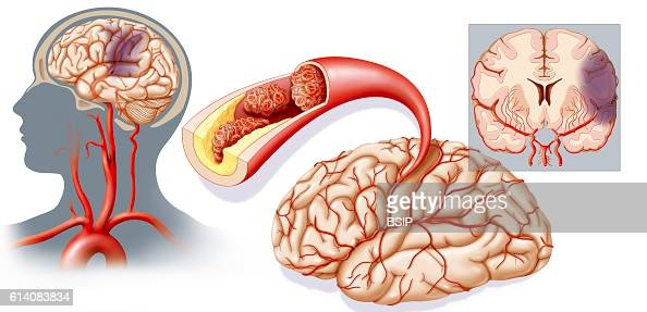 illustration of a cerebrovascular accident caused by