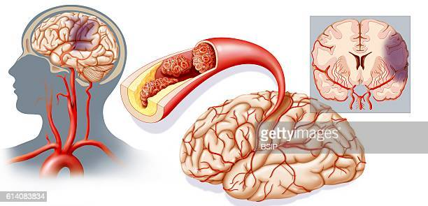 Illustration of a cerebrovascular accident caused by ischemia Ischemic accidents are due to the occlusion of a cerebral artery or one leading to the...