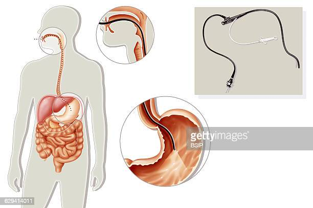 Illustration of a gastroscopy highlighting the path of the gastrofibroscope introduced into the mouth down the oesophagus into the stomach Two...