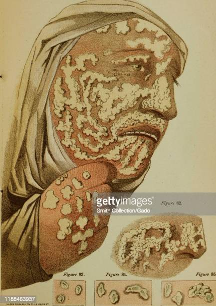 "Illustration of a person with smallpox on their face and hands, from the book ""Contagious and Infectious Disease"" by author Joseph Jones et al,..."