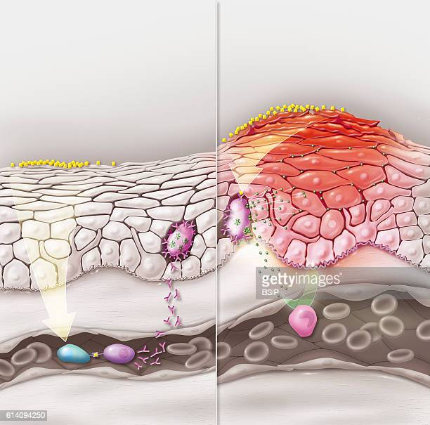 Illustration of a skin contact allergy at first contact the reaction phase and second contact the allergic reaction manifests itself During the first...