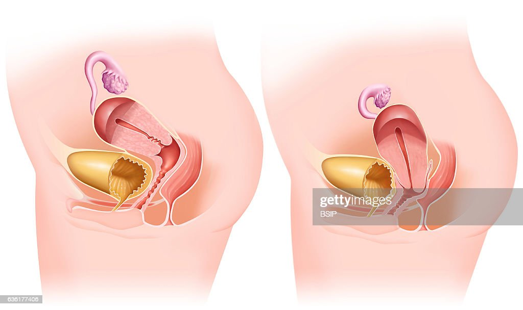 Genital Prolapse Drawing Pictures Getty Images