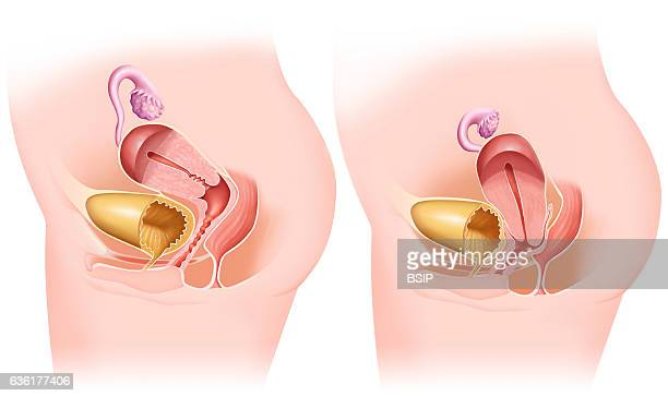 Illustration of a uterine prolapse the uterus descends into the vaginal cavity