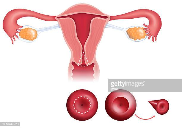 Illustration of cervical conization It is an operation which consists of removing part of the cervix that is in the shape of a cone It is advisable...