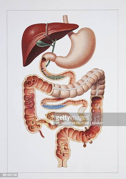 Illustration of digestive system main causes of diarrhea