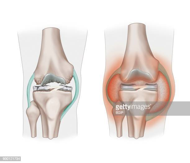 Illustration of osteoarthritis and arthritis of the knee On the left osteoarthritis of the knee showing meniscal deterioration going as far as a...