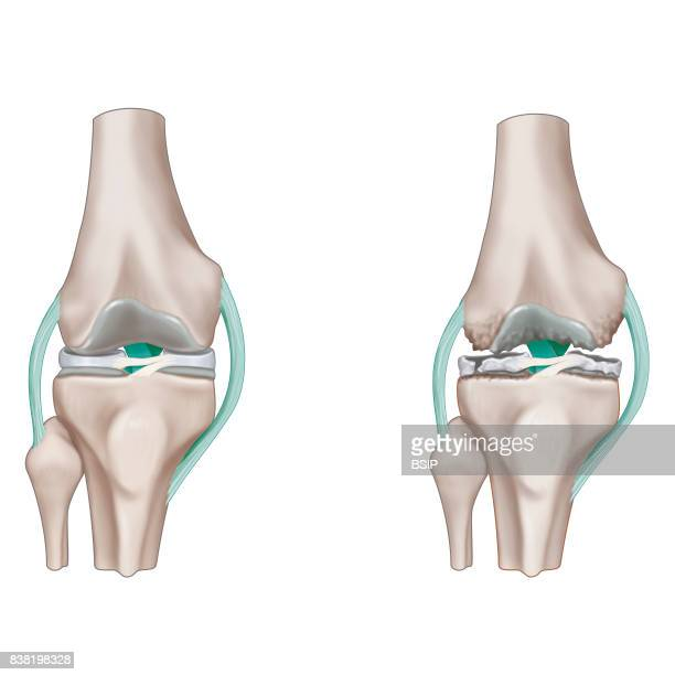 Illustration of osteoarthritis of the knee On the left the anatomy of a healthy knee joint and on the right a knee that is deformed due to...