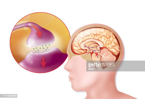 Illustration of Parkinson's disease It affects dopamine neurons in the substantia nigra Dopamine vital for transmitting the nerve impulse used in...