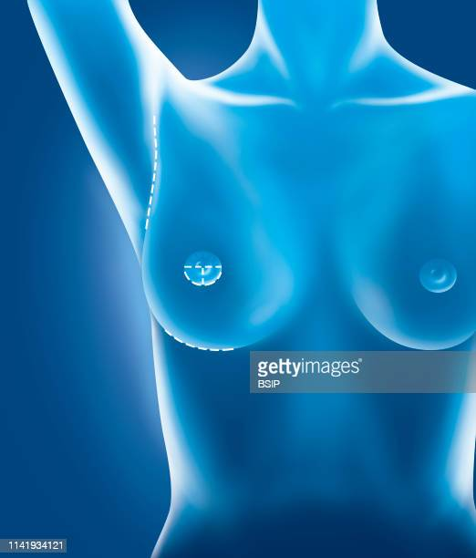 Illustration of potential scars when inserting breast implants. Areolar region: the incision is horizontal in the areola or periareolar. Axillary...
