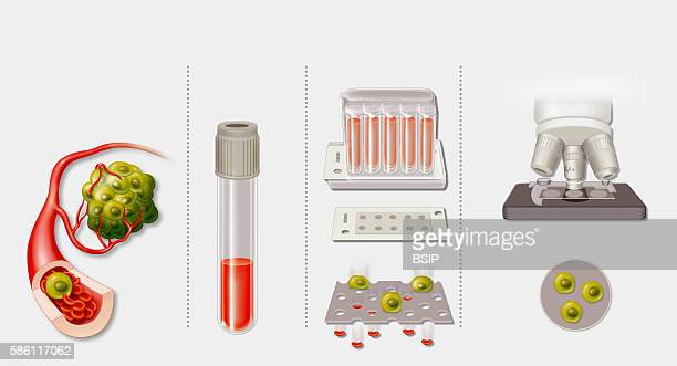 Illustration of screening for cancer with a blood test In the case of a cancerous tumor tumor cells pass into the bloodstream In a blood test and...