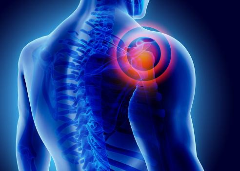 3D Illustration of shoulder painful. 545646362