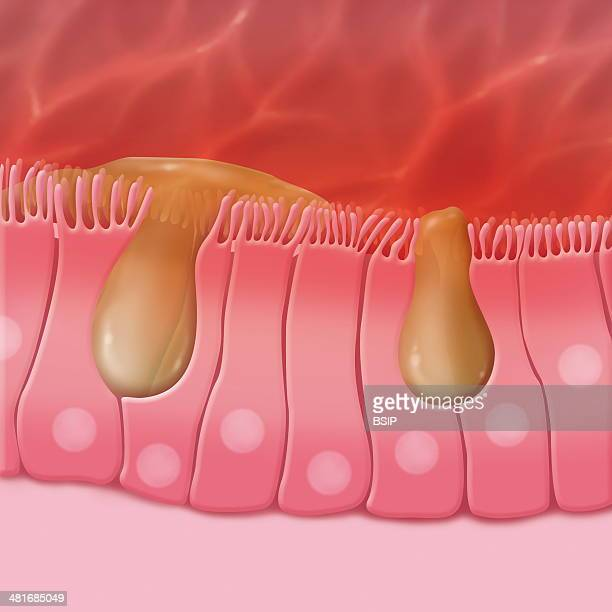 Illustration of the ciliated cells of the sinus These cells drain mucus that traps external particles In the case of sinusitis the ciliated cells...