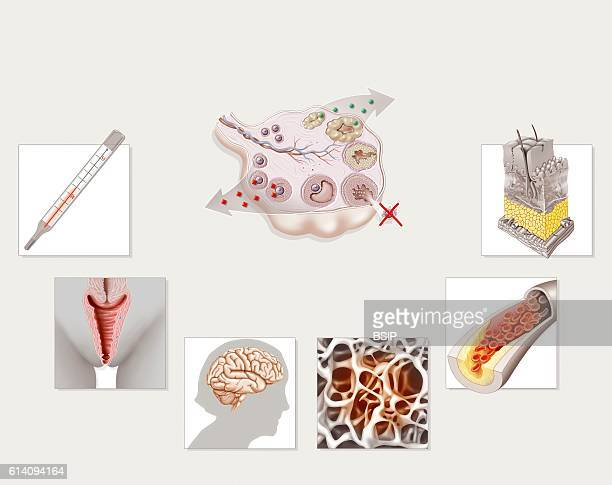 Illustration of the consequences of menopause caused by hormone imbalance the end of ovulation and periods In a woman 50s there is a drop in the...
