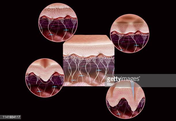 Illustration of the signs of ageing in skin dulling of the epidermis brown spots skin slackening and wrinkles In the centre of the image a...