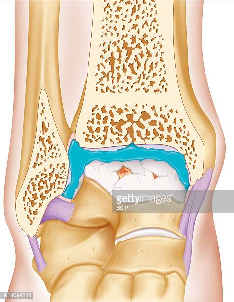 Illustration of the treatment of osteoarthritis in the ankle by injecting a viscosupplement into the synovial joint surrounded by its membrane This...