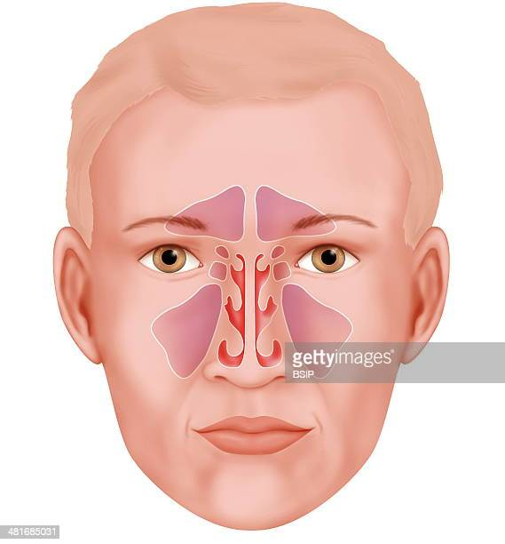 Ethmoid Sinus Stock Photos and Pictures | Getty Images