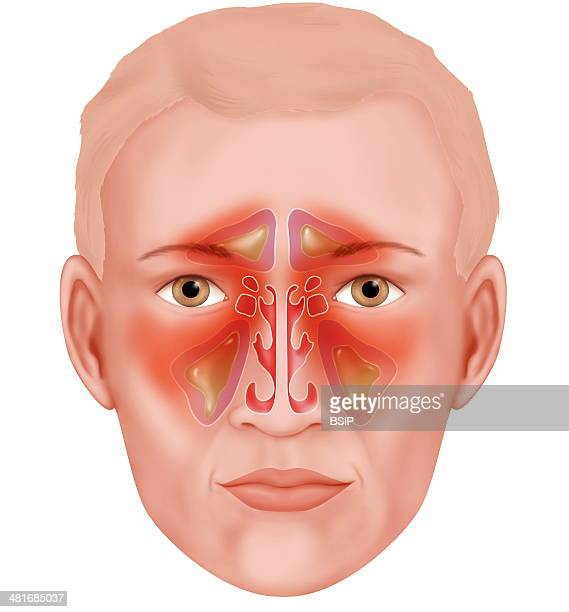 Illustration of the various paranasal sinuses that are infected during sinusitis involving thick mucus and swelling From top to bottom frontal sinus...