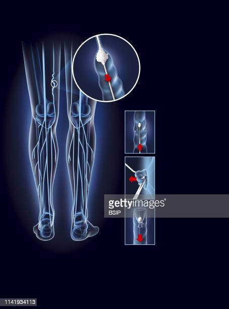 Illustration of varicose vein treatment sclerotherapy From top to bottom right radiofrequency and laser phlebectomy stripping