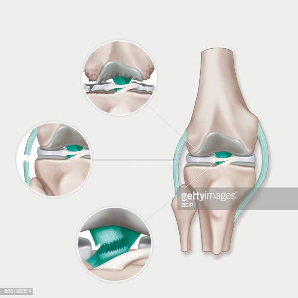 Illustration of various knee pathologies From top to bottom osteoarthritis of the knee sprain with a torn lateral ligament dislocation and torn...