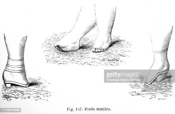 Illustration showing consequences of foot binding in 19th Century China