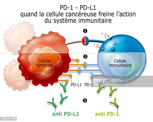 Illustration showing immunomodulators that latch onto the PDL1 cancer cells and the PD1 immune cells to block the liaison PDL1 PD1 which dampens the...