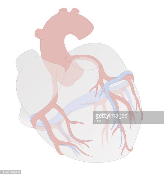 Illustration showing the left and right coronary arteries The right coronary artery produces the right marginal artery the right interventricular...