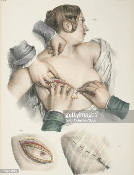 Illustrations showing a mastectomy procedure 1900