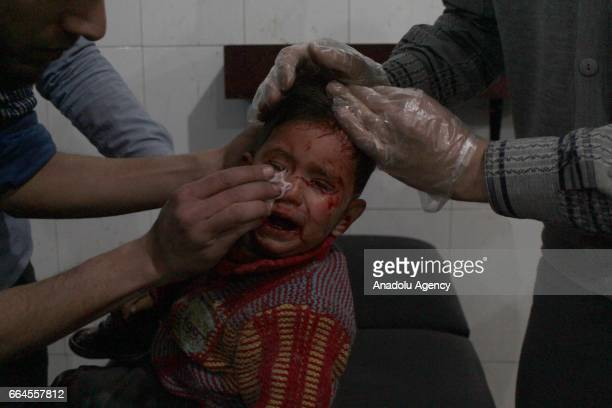 Image contains graphic content] A wounded Syrian kid receives medical treatmnent at an hospital after Assad Regime's airstrike over residential areas...