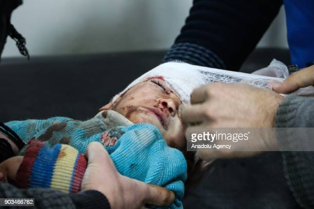 Image depicts graphic content] A wounded baby gets treatment at a sahra hospital after an airstrike carried out by the warplanes of Assad Regime in...