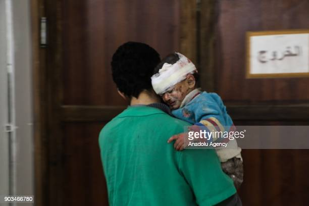 Image depicts graphic content] A wounded baby is seen after getting treatment at a sahra hospital following an airstrike carried out by the warplanes...