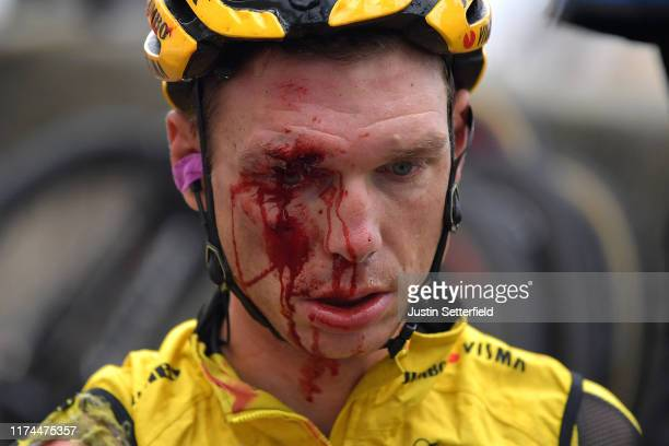 Image depicts graphic content] / Tony Martin of Germany and Team JumboVisma / Injury / Crash / Pull out of the race / Abandon / Detail view / during...