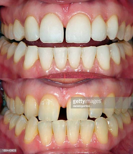 image of straight white teeth and crooked yellow teeth - ugly lips stock photos and pictures