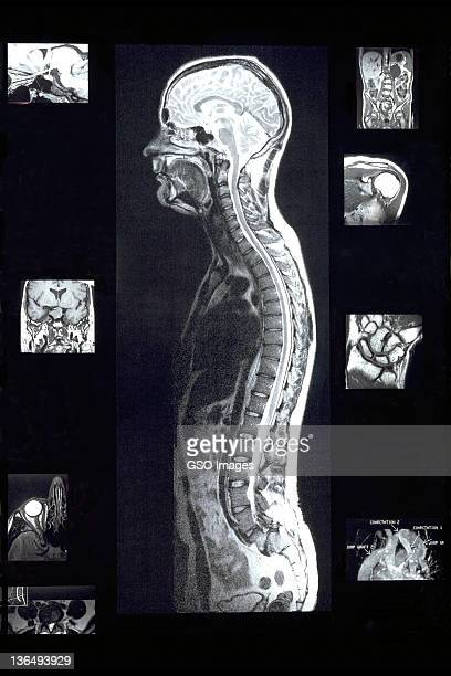 MRI images of man with various sections