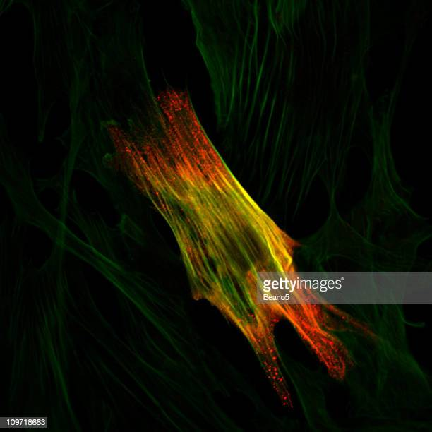 Immunoflourescence of a smooth muscle cell
