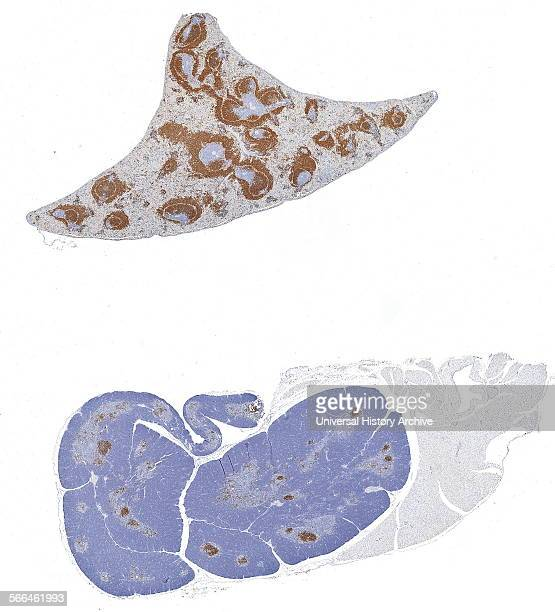 Immunoperoxidase staining of formalinfixed paraffinembedded mouse spleen and thymus showing cell membrane staining in the Bcells