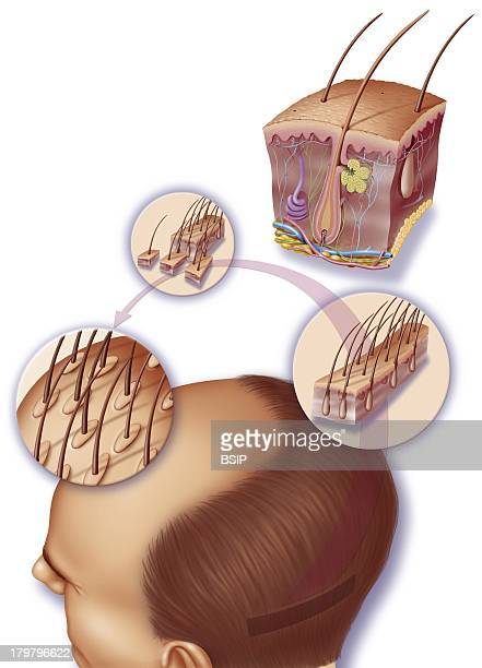 Implant Hair Surgery Skin Anatomy With Hair Follicles Showing A Hair Implantation Operation On A Man Suffering From Baldness The Graft Is Taken From...