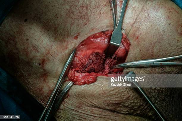 implant of polypropylene mesh for hernia repair (abdominal surgery) - inguinal hernia stock pictures, royalty-free photos & images