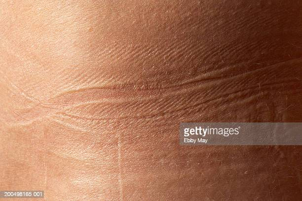 Imprint of waistband on woman's hip, close-up